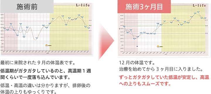 施術前→施術3ヶ月目